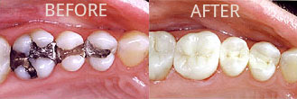 Silver fillings compared to white composite fillings.